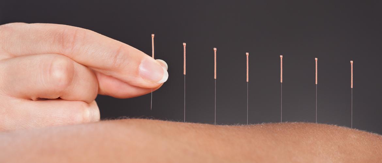 Acupuncture port st lucie
